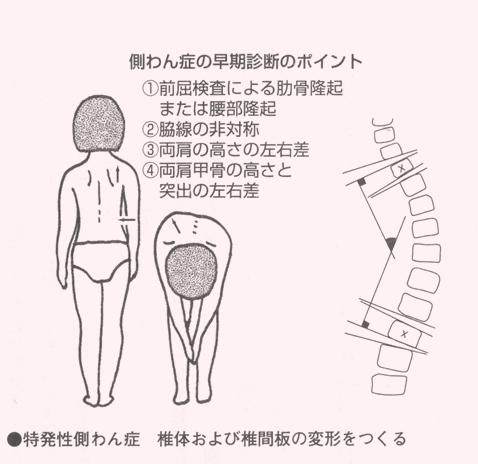 左右 違う 肋骨